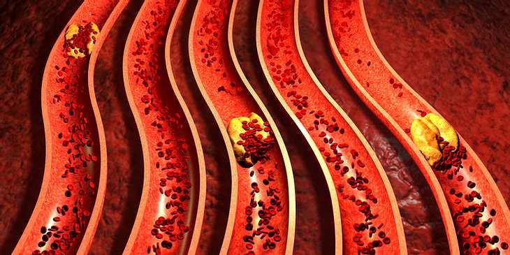 Vaskuläre Demenz durch Arteriosklerose