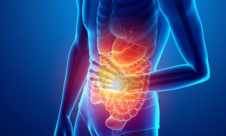 Bauchschmerzen durch Blähungen
