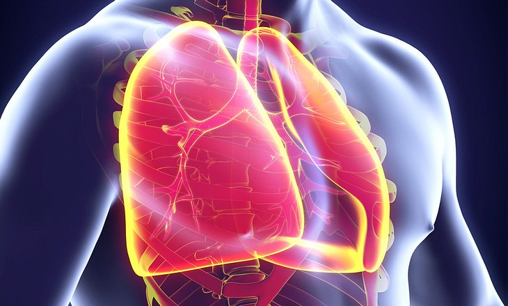 Bronchitis durch Nasenpolypen