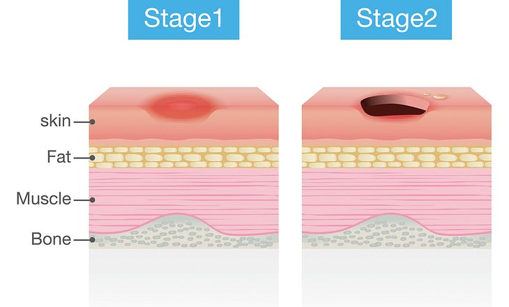 Dekubitus Stage1+2
