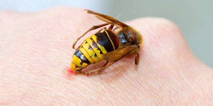 Wespe hat in die Hand gestochen