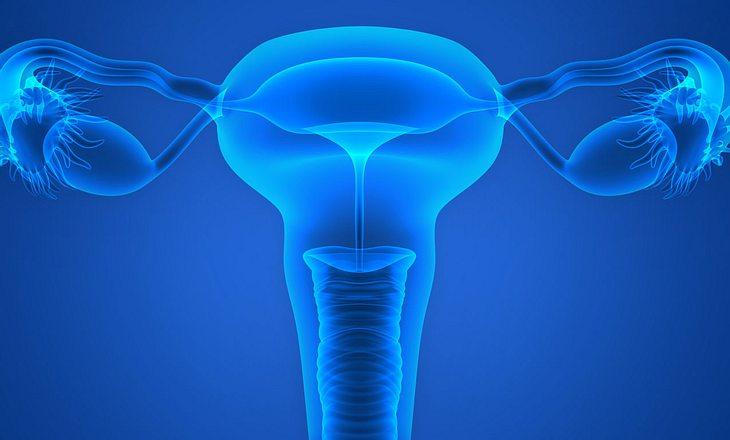 Gebärmutterentzündung durch Tripper