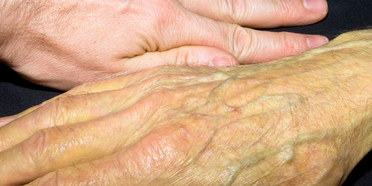 psa test geschlechtsverkehr hepatitis c geschlechtsverkehr