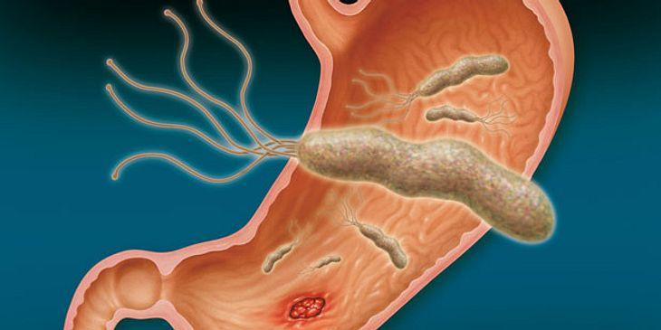 Helicobacter pylori Hauptverursacher von Magengeschwüren