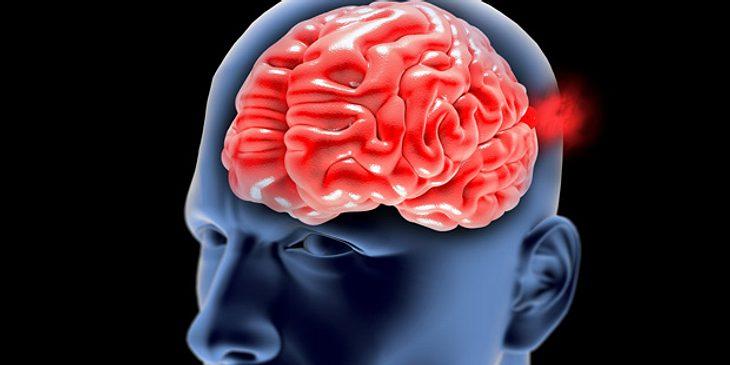 Hirnblutung kann lebensbedrohlich sein