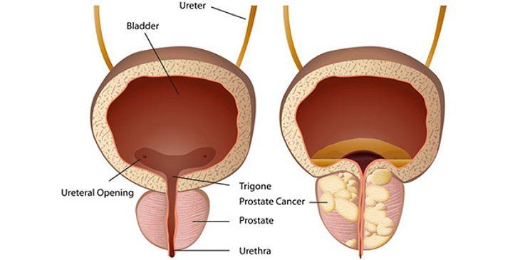 Illustration: links eine gesunde Prostata, rechts Prostatakrebs