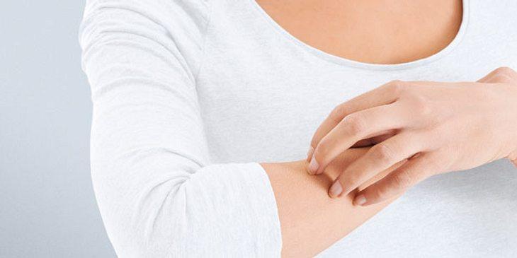 Frau mit Juckreiz wegen trockener Haut