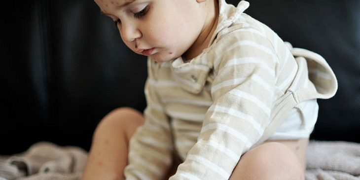 Kind kann nach Windpocken auch Gürtelrose bekommen