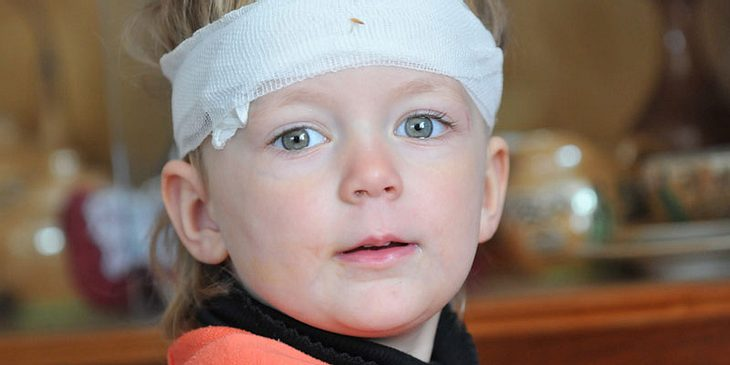 Kind mit Kopfverband