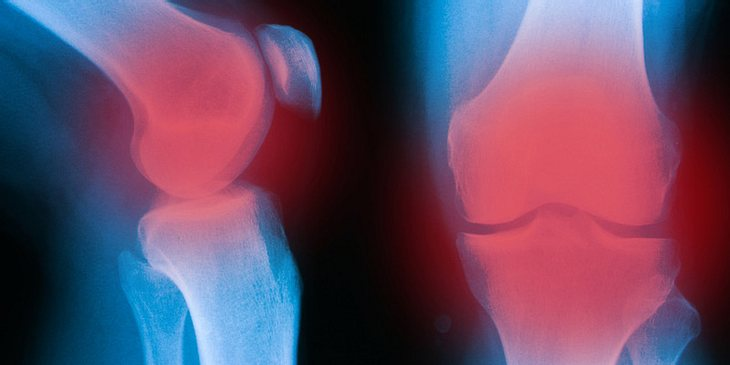 Rötung des Kniegelenks als Knieschmerzen-Symptom