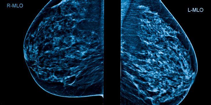 Mammografie-Aufnahme