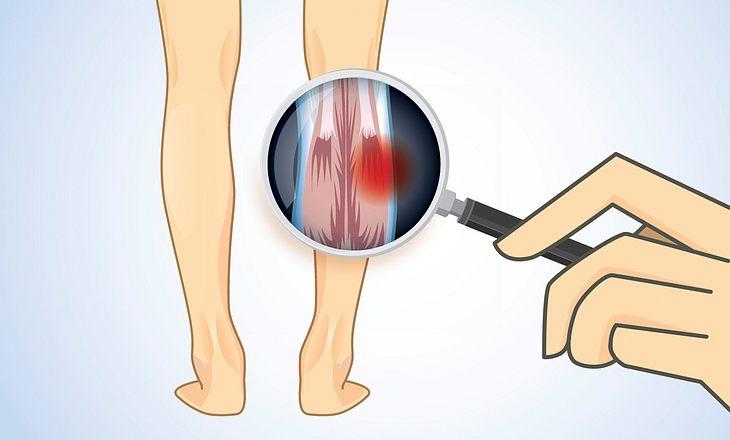 Muskelstörung bei Chorea Huntington