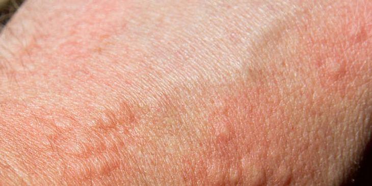 Nesselsucht am Arm