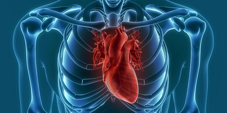 PAVK kann zu Herzinfarkt führen