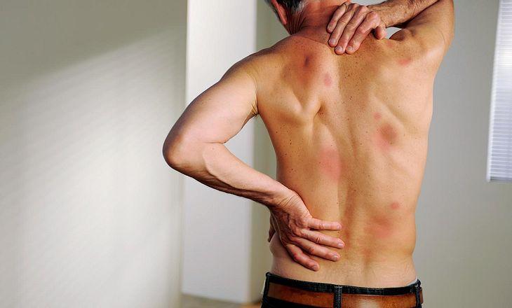 Rote Flecken am Körper