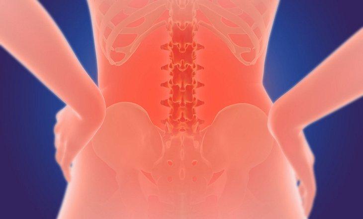 Rückenschmerzen durch Bandscheibenvorfall