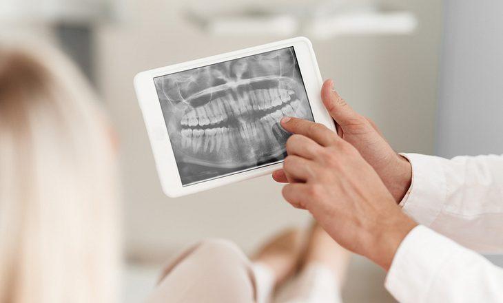 Sinusitis-Ursache Zahnentzündung