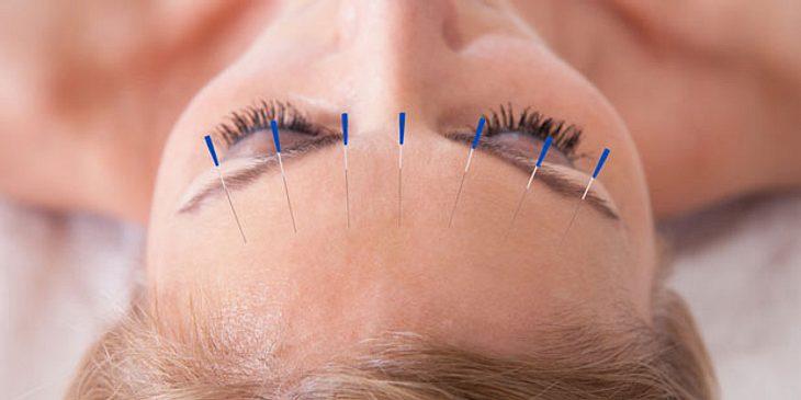 Akupunktur gegen Trigeminus-Neuralgie