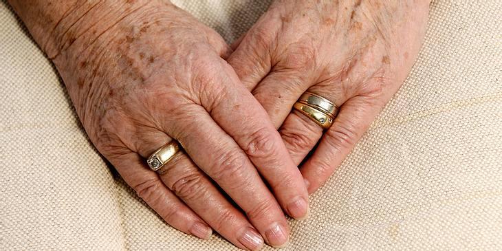 age spot versus skin cancer